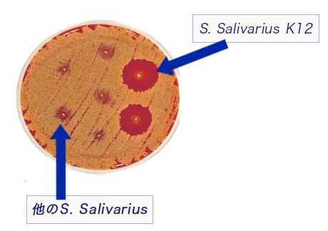 salivarius